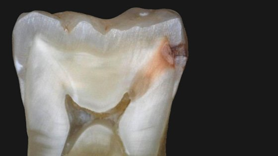 Деминерализация зуба в разрезе