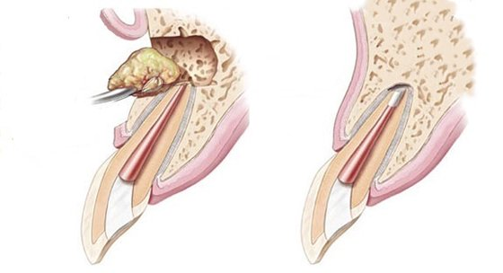 Лечение кисты зуба или как вылечить кисту на десне