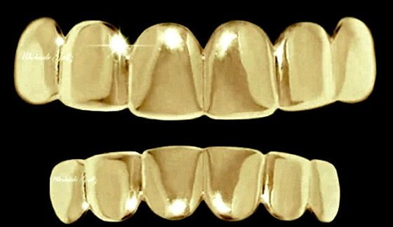 накладка на зубы виниры фото
