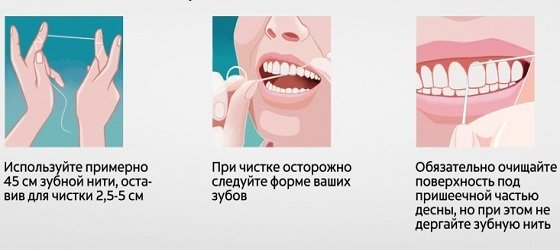 Гигиена полости рта для предотвращения болезней десен