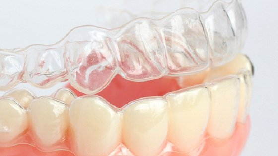 Каппы для зубов после брекетов