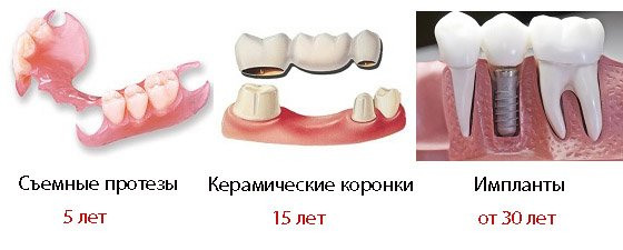 обтачивание зубов под виниры