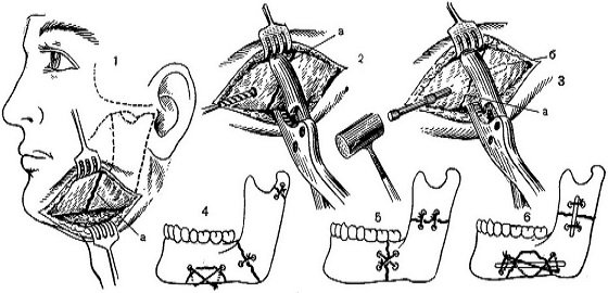 Остеосинтез после перелома челюсти