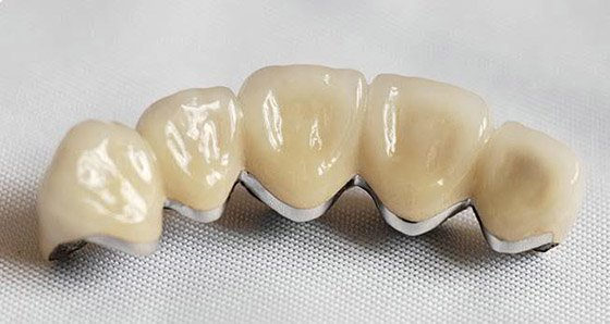 Фото установки коронок на зубы