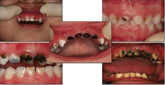 Early signs of tooth decay