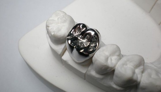 Восстановление зубов коронками