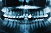 Панорамный рентген зубов