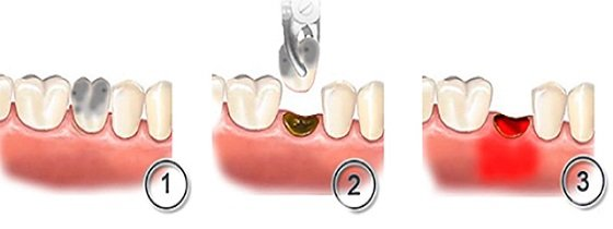 Гноится десна после удаления зуба