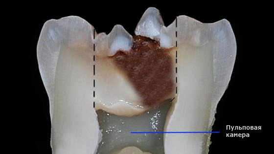 Зуб, пораженный пульпитом